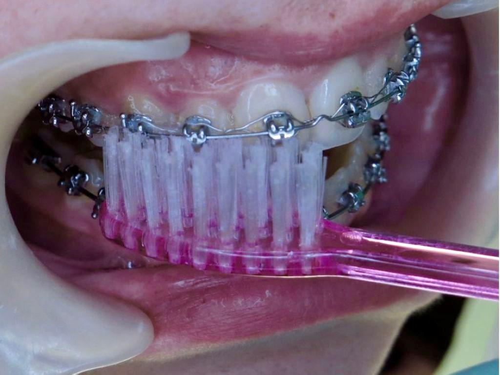 comment se brosser les dents avec un appareil dentaire